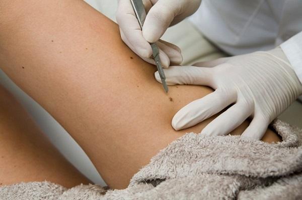 Fel tudod ismerni a melanomát? Egy híres orvos megmutatja hogyan ismerhető fel a bőrrák!