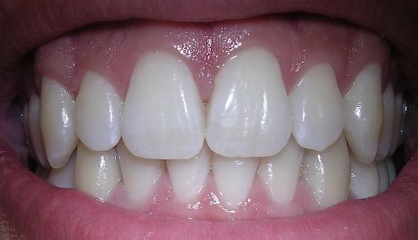 Így gyógyítsd természetesen a fogínygyulladást és a fogszuvasodást!