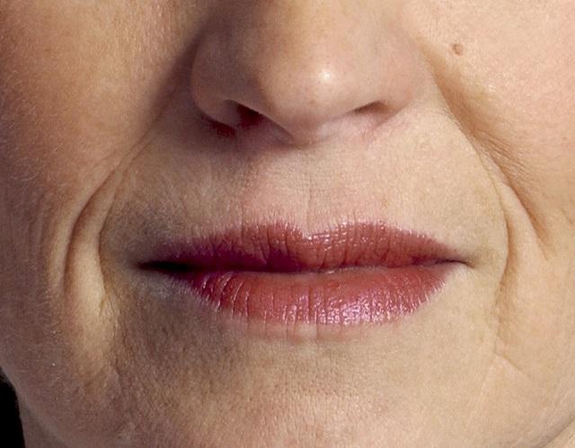 5 természetes gyógymód, amely segít eltüntetni a száj környéki apró ráncokat
