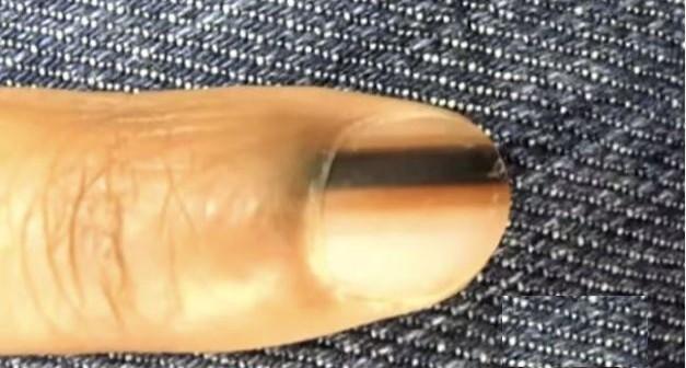 Fekete csík jelent meg a körmödön? Azonnal fordulj orvoshoz, súlyos betegséget rejthet!