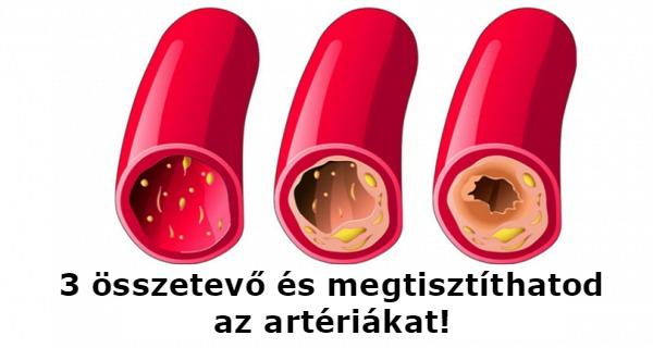 arteriak-tisztitasa