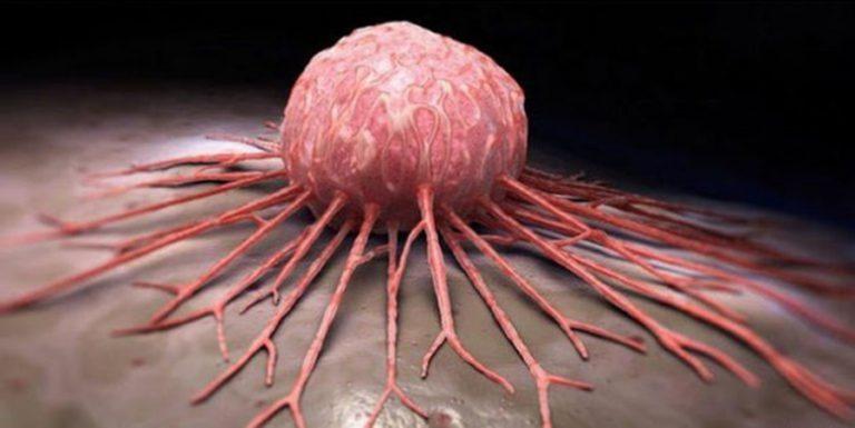 """8 élelmiszer, amely """"táplálja"""" a rákos sejteket. Jobb, ha felhagysz a fogyasztásukkal!"""