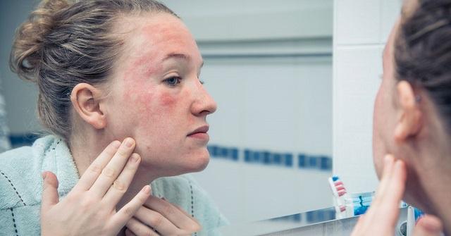 A fibromyalgia 10 tünete, amit nem szabad figyelmen kívül hagyni!