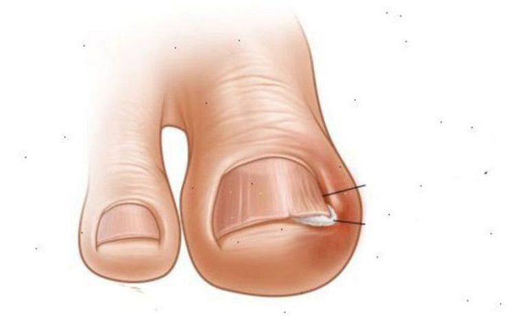 5 hasznos módszer, amivel elháríthatod a benőtt köröm problémát a lábujjadon!