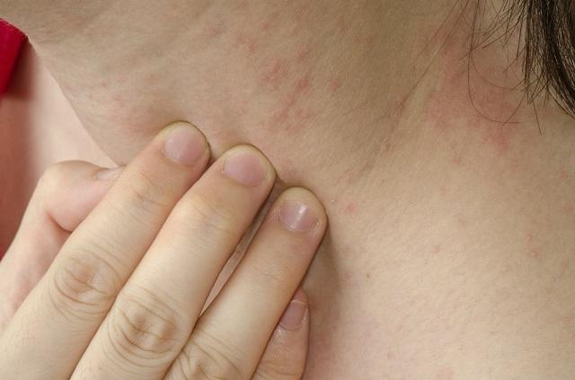 A Candida gombás fertőzés 7 tünete: Te már felfedezted magadon ezeket?