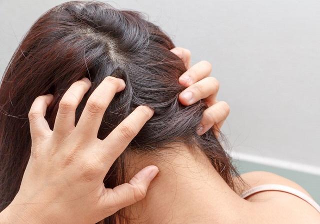 A fejbőr 5 figyelmeztető jele, amit soha ne hagyj figyelmen kívül!