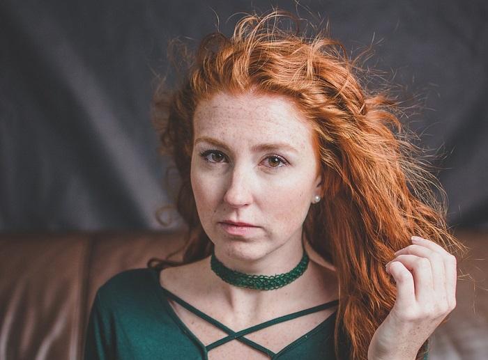 A vörös hajúak vonzóbbak, ám jobban ki vannak téve néhány egészségügyi problémának!