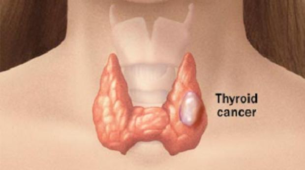 A pajzsmirigyrák nagyon veszélyes lehet, mert senki nem figyel ezekre a tünetekre