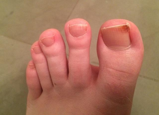 Ha a benőtt lábujjköröm fájdalmassá teszi az életed, ezeket a hibákat véletlenül se kövesd el!