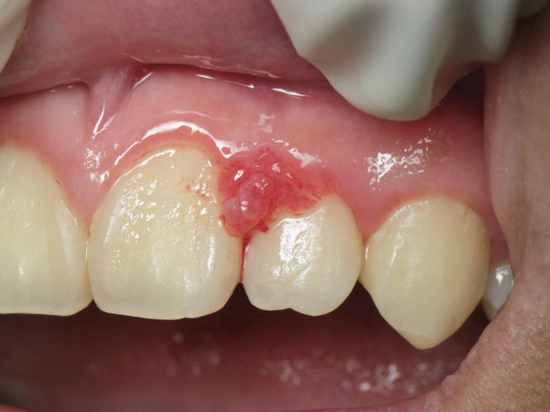 Így kezeld házilag a fogínygyulladást: nincs több duzzadás, nincs több vérzés!