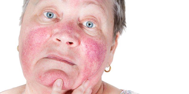 6 dolog, amit sosem szabad az érzékeny bőrödre tenned!