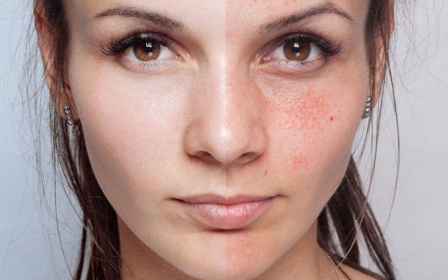 Így szabadulhatsz meg a napsugarak által okozott pigmentfoltoktól!