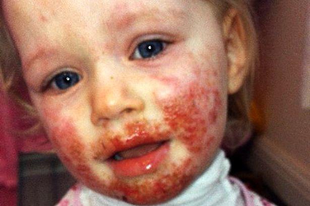 """Ezt a kislányt csaknem """"élve falta fel"""" a herpesz vírus. Így néz ki egy év kezelés után"""