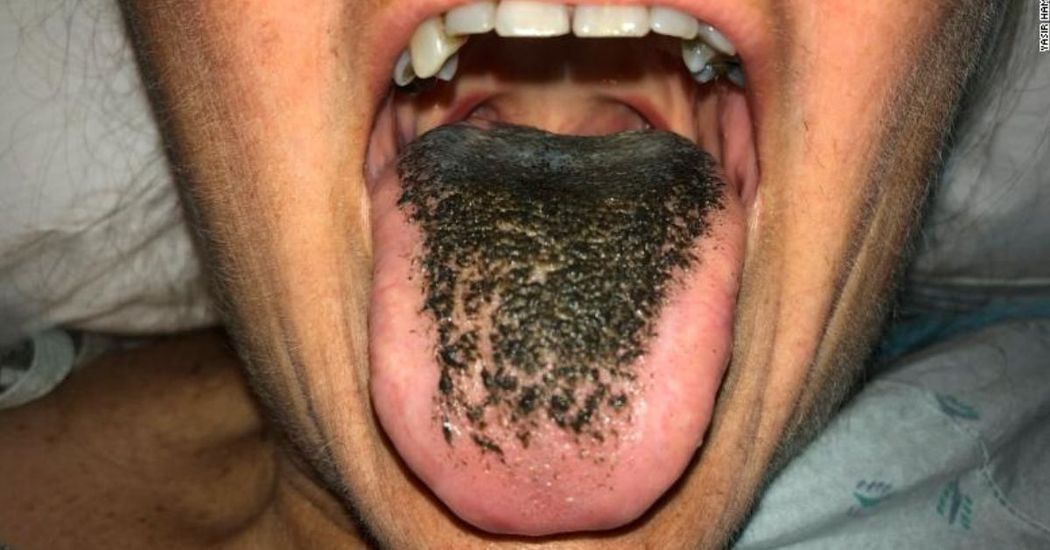 """A """"fekete nyelv"""" valós probléma, ez okozza a betegséget"""