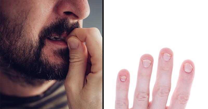 Ez a közös azokban, akik a körmüket rágják - és az nem a szorongás!