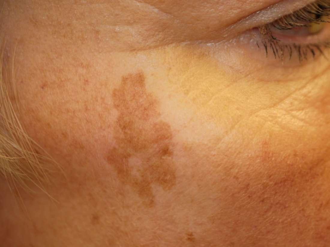 Mit kell tudni az öregedési foltokról, és mit lehet tenni ellenük?