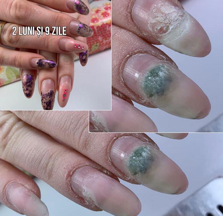 A műköröm veszélyei: tönkreteszi a körmöt és körömgombát is okozhat!